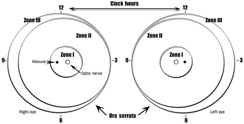 Schéma sietnice pravého a ľavého oka, znázorňujúca ohraničenie zón a číslic číselníka hodín, používané pre popis lokalizácie a rozsahu zmien pri ROP. Zóna II sa ešte rozdeľuje na centrálnu – posteriórnu časť, ktorá nalieha na zónu I a periférnu čast Zóna III sa nachádza len v temporálnej časti sietnice.