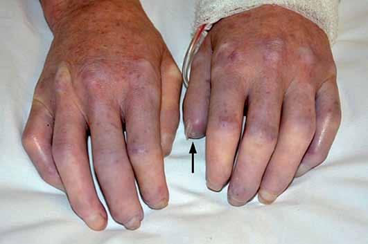 Sklerodaktylie, jamkovité jizvičky na špičkách prstů (↑).