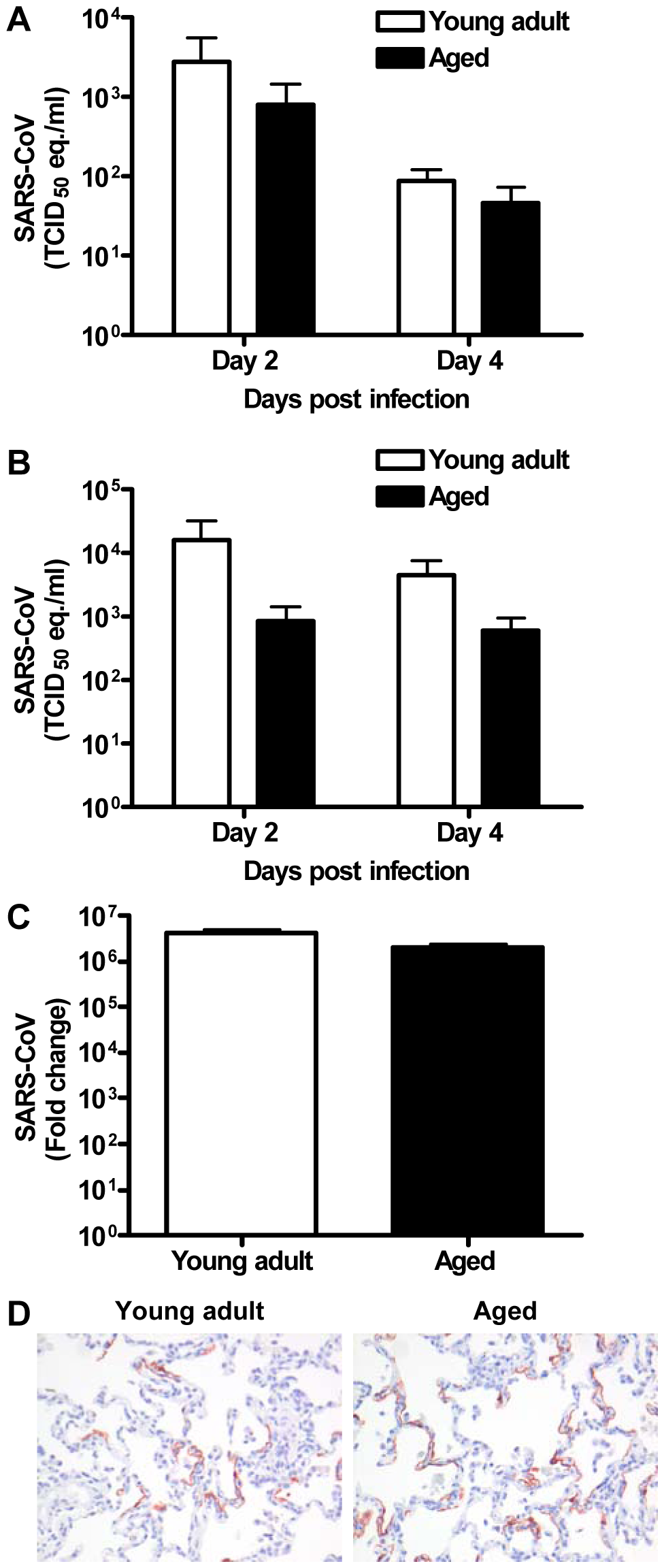 Viral replication levels in SARS-CoV-infected aged and young adult macaques are similar.
