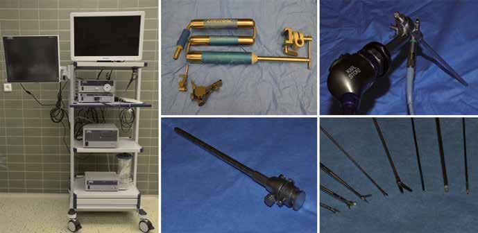 Přehled endoskopické techniky a instrumentária. Endoskopická věž (vlevo), fixační zařízení s 3D rotační hlavou umožňující jemnou korekci polohy endoskopu (nahoře uprostřed), trokar (dole uprostřed), fullHD kamera s optikou a světelným kabelem (vpravo nahoře) a endoskopické nástroje (vpravo dole).