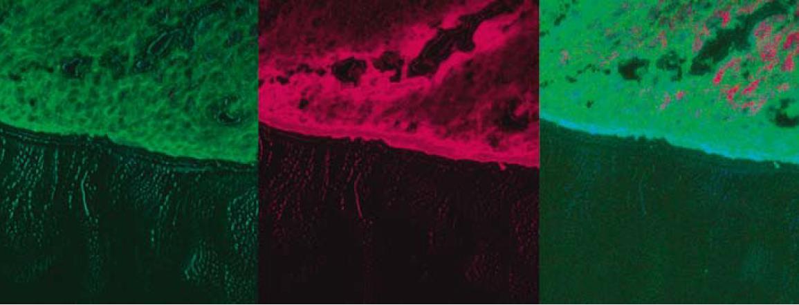 Fluorescenčná štúdia s použitím fotosenzitizátora ALA – tubulárny adenóm rekta s LGD. Fig. 2. Fluorescence study with photosensitizer ALA – tubular rectal adenoma with LGD.