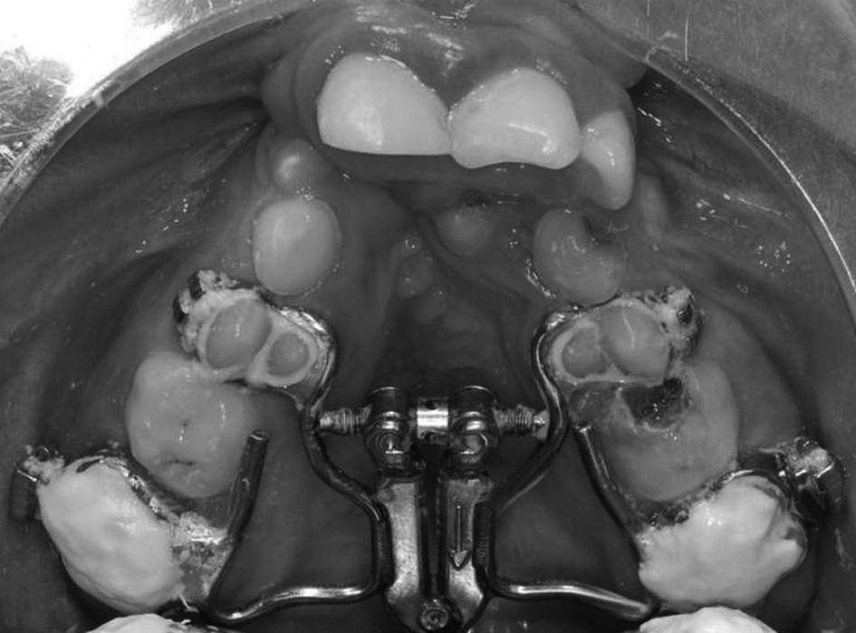Horní zubní oblouk pacienta po nasazení expanzního aparátu s vějířovým hyrax šroubem, na prvních horních molárech jsou nákusy přechodně zvyšující skus.