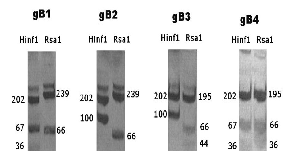 Vzorec produktů RFLP u jednotlivých genotypů gB Fig. 1. RFLP patterns of different gB genotypes