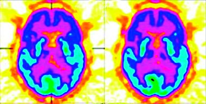 Obr. 1a Zobrazení cerebrálního metabolismu pacientky s akinetickým mutismem pomocí PET-CT v transverzální rovině po podání placeba: tmavě modrá barva značí nízkou aktivitu v oblastech frontálního kortexu (volně podle [18])