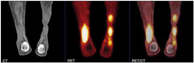 PET CT obraz xantogranulomu dolní končetiny s vysokou akumulací fluorodeoxyglukózy.