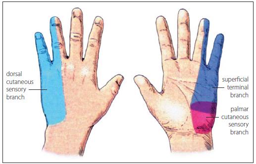 Kožní inervační oblasti n. ulnaris – r. dorsalis (světle modrá barva), r. palmaris (červená), r. superficialis (tmavě modrá). Fig. 9. Cutaneous innervation regions of the ulnar nerve – r. dorsalis (bright blue colour), r. palmaris (red), r. superficialis (dark blue).