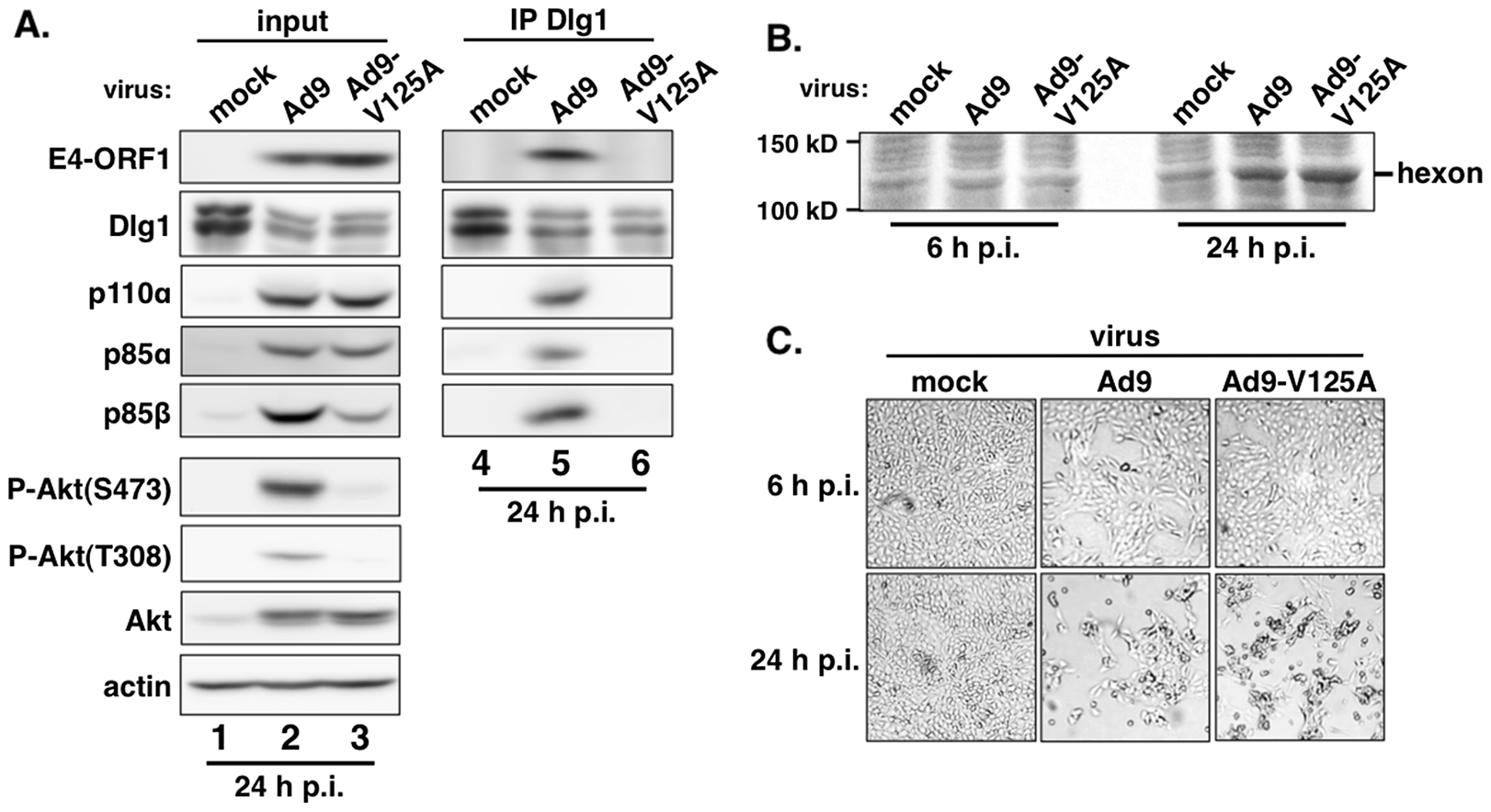 E4-ORF1 also assembles the ternary complex in adenovirus-infected cells.