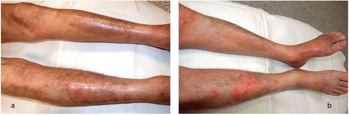 Kožní nález na dolních končetinách při stanovení diagnózy (a) a po terapii (b). Kožní nález je částečně modifikován současným výsevem psoriázy, kterou pacient trpí dlouhodobě.