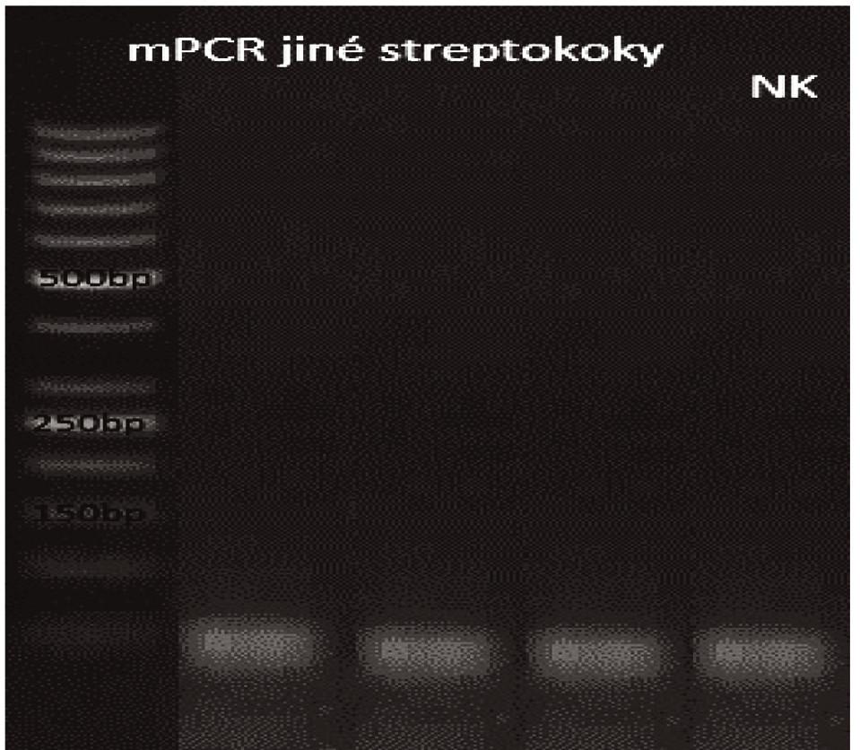 Příbuzné streptokoky Dráha 1: 50bp DNA Ladder Dráha 2: <i>S. pseudopneumoniae</i> Dráha 3: S. sanguinis</i> Dráha 4: S. oralis</i> Dráha 5: negativní kontrola<br> Fig. 10. Related streptococci Lane 1: 50bp DNA Ladder Lane 2: <i>S. pseudopneumoniae</i> Lane 3: <i>S. sanguinis</i> Lane 4: <i>S. oralis</i> Lane 5: negative control