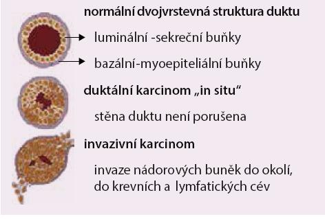 Obr. Schematické znázornění základních lézí prsu.Původní rozdělení lézí prsu na duktální a lobulární ztrácí své opodstatnění, význam má pouzeu nádorů in situ, vzhledem k jejich rozdílným biologickým vlastnostem, nicméně je dosudběžně používáno