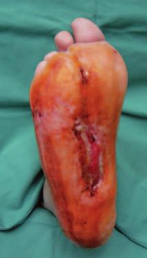 Stav po 9 týdnech léčby preparátem Hyiodine®.