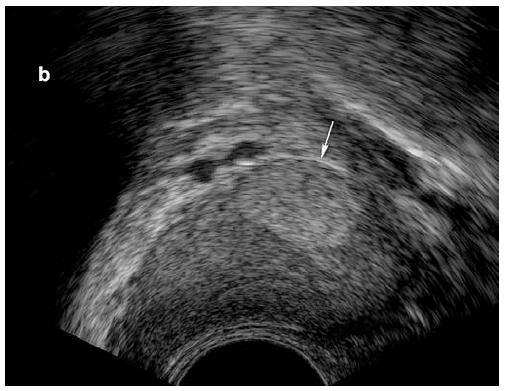 Obr. 4b. Hyperechogenní oblast o velikosti 9 × 7 mm v pravém laloku prostaty u 22letého muže (9. rok substituční léčby), podélná rovina