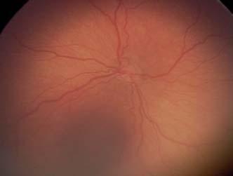 Plus forma ROP – výrazná dilatácia vén a tortuozita arteriol