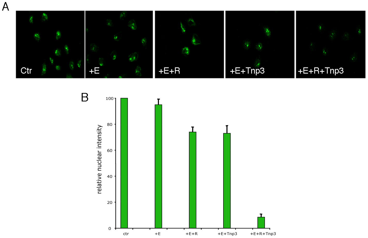 Tnp3 is an export factor for tRNAs incorporated into HIV-1 particles.