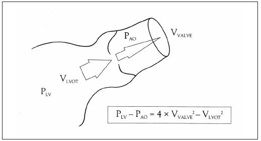 Diagram ukazuje teorii měření transvalvulárních gradientů vtokových rychlostí jetu s použitím Bernoulliho rovnice.