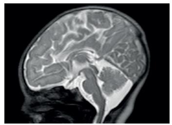 MR dysgeneze kalózního tělesa. Fig. 2. Magnetic resonance imaging – corpus callosum dysgenesis.
