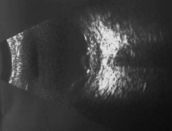 USG nález o. sin – uveitické štádium VHK syndrómu