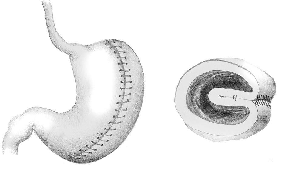 Vertikální gastrická plikace Fig. 2: Vertical greater curvature gastric plication