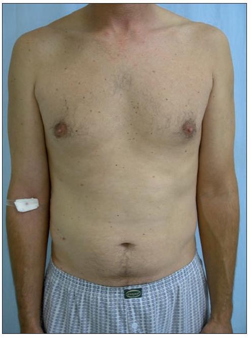 Remise onemocnění, stav po 16 měsících léčby Enbrelem v dávce 25 mg s. c. 1krát týdně