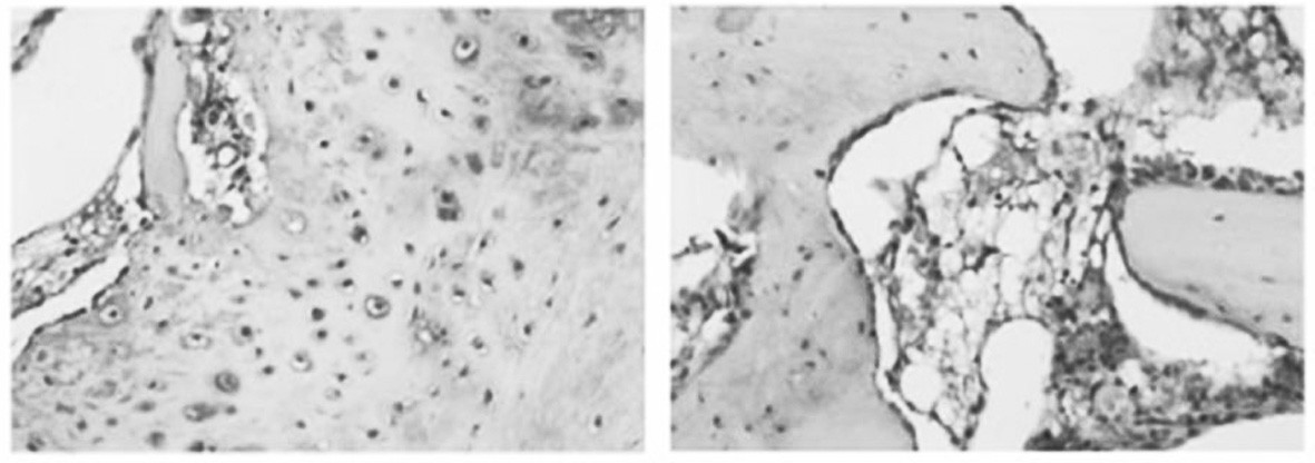 Koncentrace von Willebrandova faktoru /vWF/ v imunohistochemickém nálezu. vWF autor považuje jako marker angiogeneze. Jeho koncentrace je signifikantně zvýšena u ESWT skupiny /tmavé partikule na obrázku vlevo/ v porovnání s kontrolním souborem. (Převzato z Wang C. J. et al., Rheumatology, 2008.)