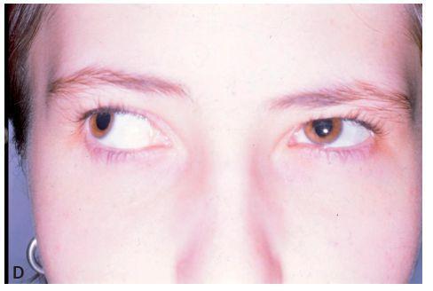 Dvacetiletá pacientka s iniciální formou strabismus sursoabduktorius – A,B: předoperační postavení a dextroverze bulbů a C,D: pooperační postavení a dextroverze bulbů