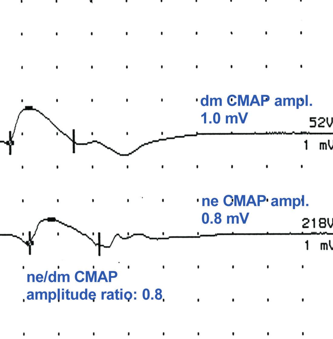Obr. 2b ukazuje nízké amplitudy dmCMAP i dmCMAP a poměr ne/dmCMAP kolem 1,0 (0,8) svědčící pro sníženou svalovou excitabilitu.