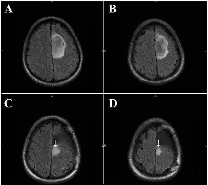 Obr. 4a, b. Pacient č. 12. Predoperačné MR vo FLAIR sekvencii zobrazujúce astrocytóm ľavej SMA. Obr. 4c, d. Pooperačné MR vo FLAIR sekvencii zobrazujúce subtotálne odstránenie nádoru. Šípka ukazujú miesto (nádorové reziduum) v zadnej časti resekčnej dutiny, pri stimulácii ktorého boli vybavené pohyby pravostranných končatín.