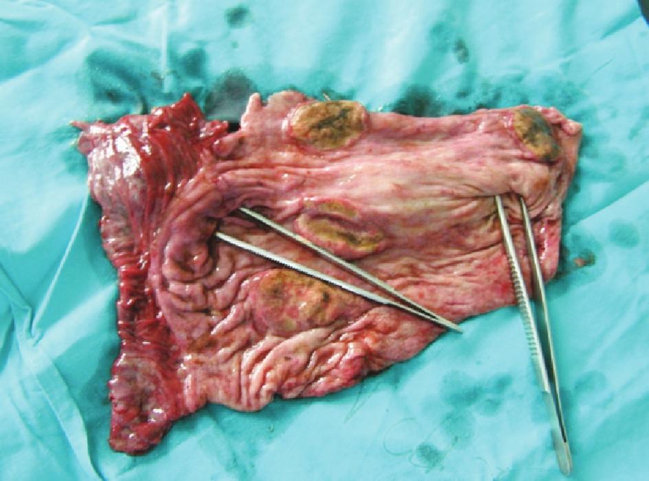 Exulcerácie žalúdka – zdroj krvácania (pinzety v kardii a pylore) Fig. 3. Gastric exulcerations– sources of bleeding (pincers within the cardia and pylorus)