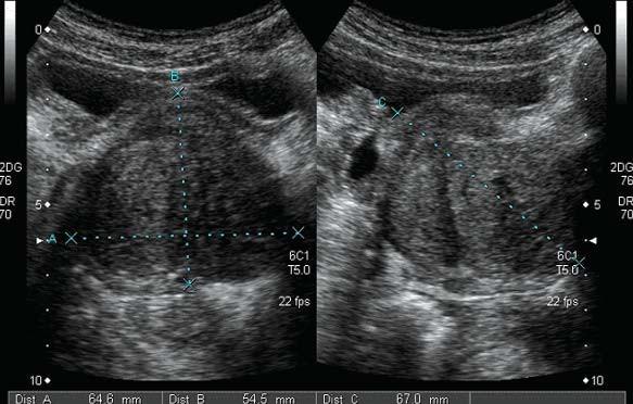 Benigní hyperplazie prostaty - transabdominální vyšetření.