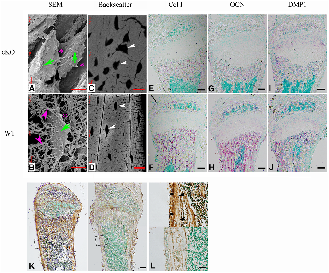 FAM20C is essential to the differentiation of bone cells.