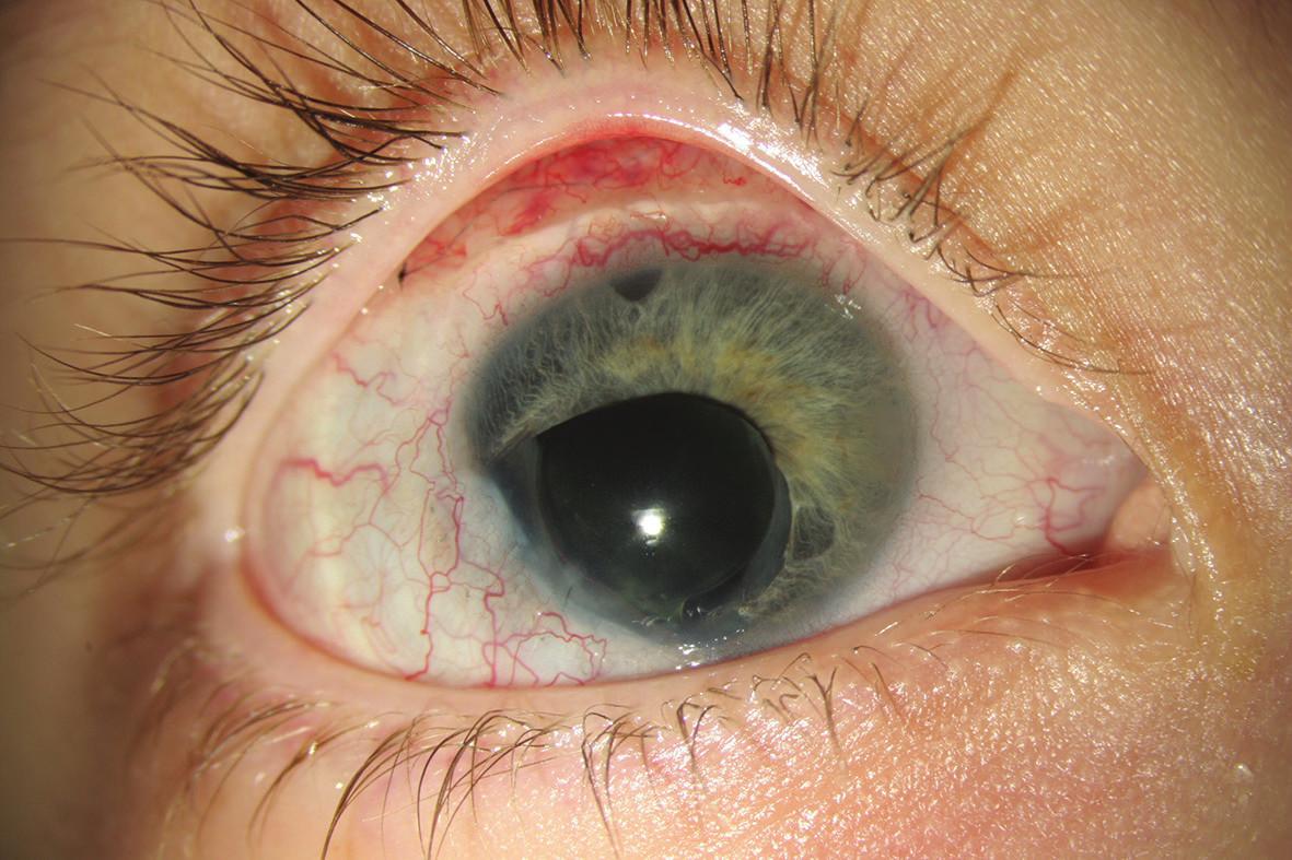 Pravé oko po 2. operaci - trabekulektomii s mitomycinem C a bazální iridektomií