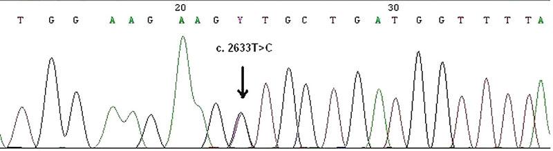 Zárodečná bodová mutace c.2633T>C ve čtvrtém exonu MSH6 genu v periferních lymfocytech zjištěna metodou přímého sekvenování. Jde o tzv. missence mutace, kdy ve vznikajícím proteinu dochází k záměně aminokyseliny, a to valinu za alanin v kodonu 878.