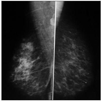 Mamografie pravého prsu Fig. 2. Mamography of the right breast