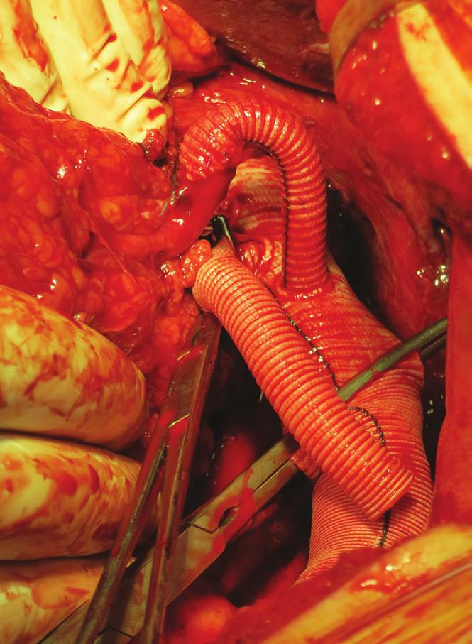 Náhrada aorty od coeliackého trunku, bypass na levou renální tepnu Fig. 15: Aorta replacement from coeliac trunk, bypass to left renal artery