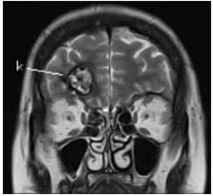 Obr. 2b) Odpovídající MR obraz k obr. 2a. k – kavernom, falx – falx cerebri