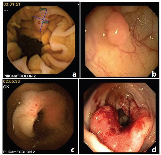 Porovnání lézí diagnostikovaných CCE a kolonoskopií (a: polyp, CCE; b: polyp, kolonoskopie; c: karcinom CCE; d: karcinom, kolonokoskopie); CCE = kapslová kolonoskopie Fig. 3: Comparison of the lesions diagnosed with CCE and colonoscopy (a: polyp, CCE; b: polyp, colonoscopy; c: cancer, CCE2; d: cancer, colonoscopy); CCE = colon capsule endoscopy