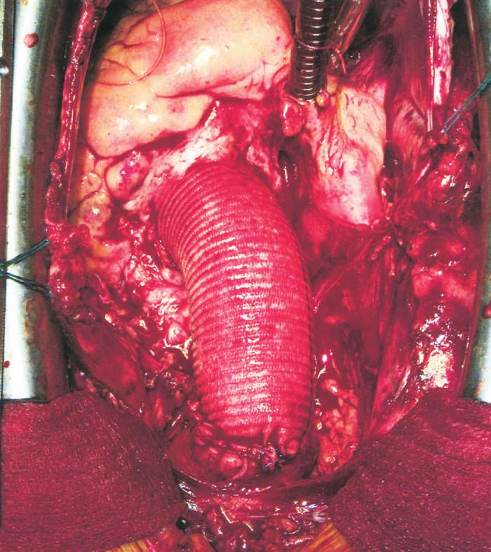 Vzestupná aorta nahrazena cévní protézou Fig. 3. The ascendidng aorta, replaced with a vascular prosthesis