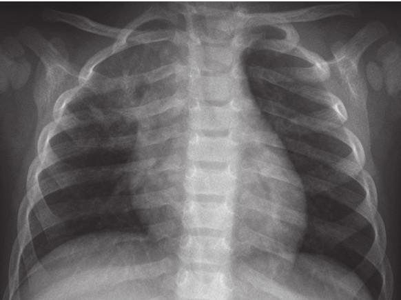 RTG snímek plic po 16 týdnech antituberkulózní terapie. Fig. 4. Chest X-ray of infant after 16 weeks of treatment.