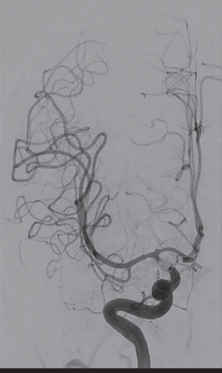 Šestapadesátiletá nemocná, klinicky: Hunt-Hess II, stupeň krvácení: Fischer I. Digitální subtrakční angiografií verifikovány tři aneuryzmata terminálního úseku vnitřní karotidy vpravo. Ošetření aneuryzmat endovaskulárně (coil).