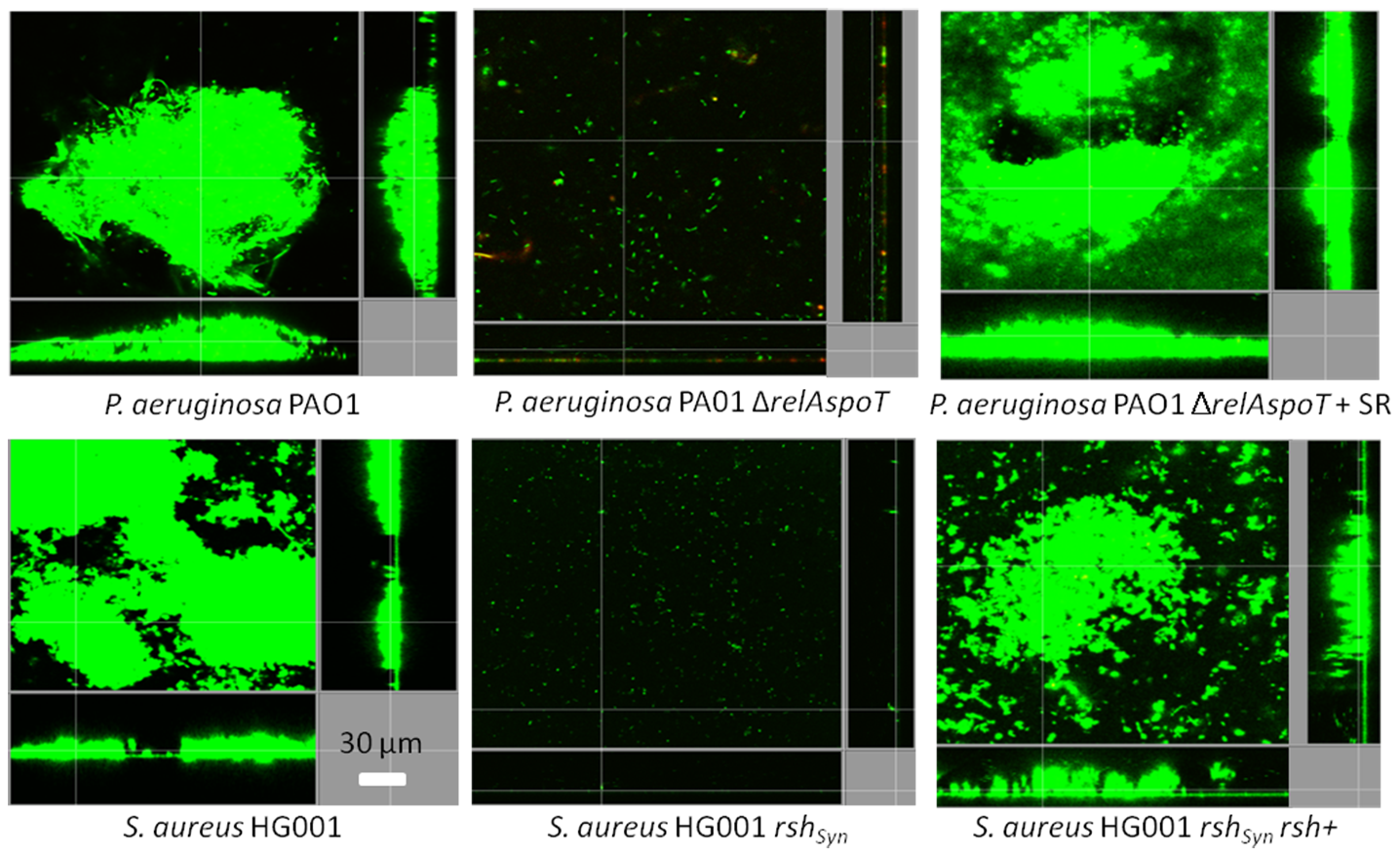Genetic complementation of (p)ppGpp synthetase enzymes restored the ability to form biofilms.