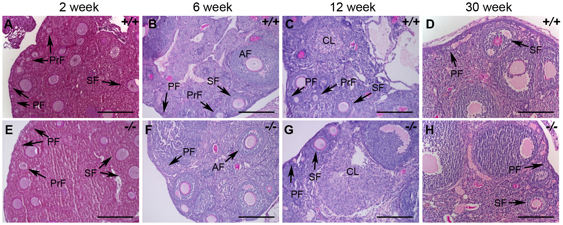 Histological analysis of wild-type and <i>Hormad1</i><sup>–/–</sup> ovaries.