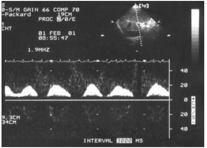 Intermitentný prietok pri fibrilácii predsiení.