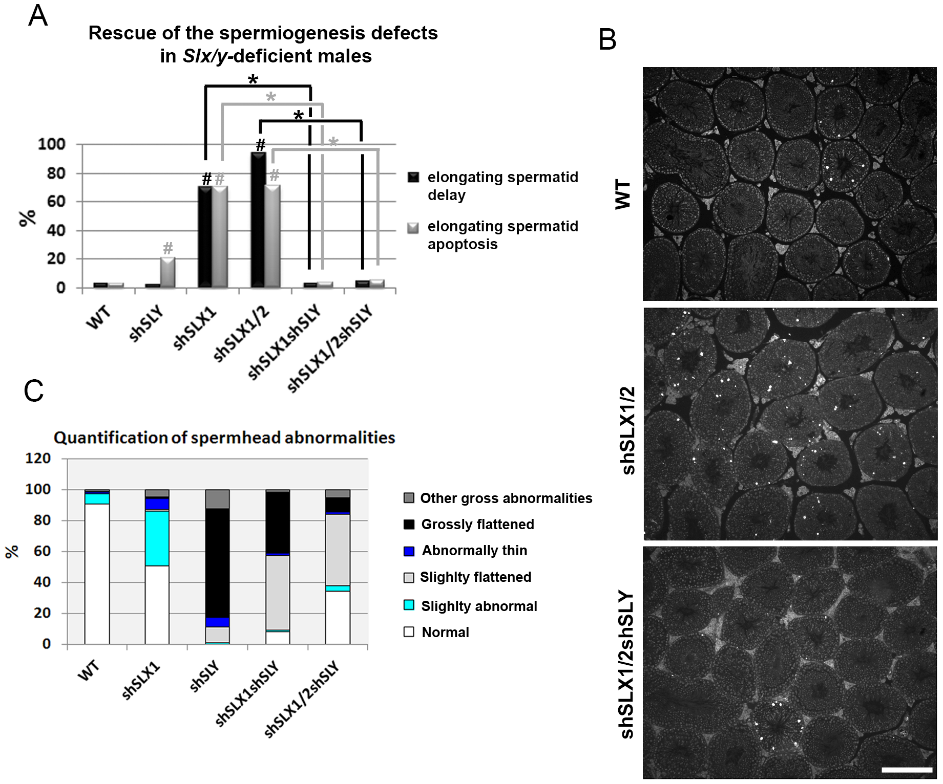 <i>Slx/y</i>-deficient males have fewer spermiogenesis defects than males that are deficient for either <i>Sly</i> or <i>Slx/Slxl1</i> alone.