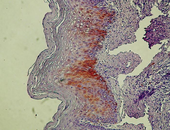 CIN I/LSIL s pozitívnym farbením antigénu p16 v bazálnej a suprabazálnej vrstve dlaždicového epitelu. Ojedinelé koilocyty. Zväčš. 300x.