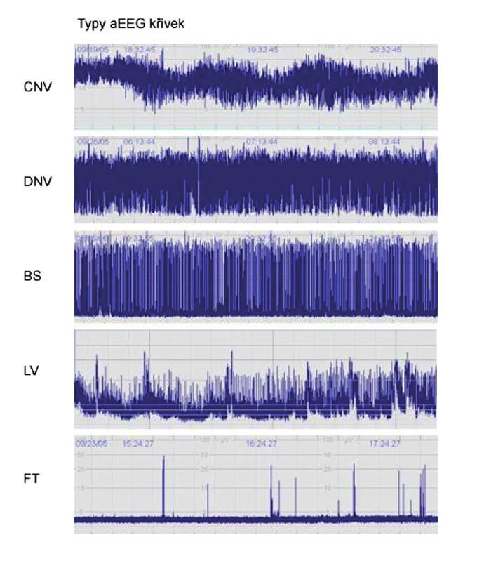 """Typy aEEG křivek.CNV: normální křivka s minimální amplitudou 7– 10 μV a maximální 10– 25 μV,  DNV: mírně abnormální křivka s minimální amplitudou pod 5 μV a maximální amplitudou nad 10 μV, patologický záznam s minimální amplitudou pod 5 μV a maximální nedosahující 10 μV, křivka BS: """"výboj- oploštění"""", LV: nízkovoltážní křivka, FT: plochá křivka."""