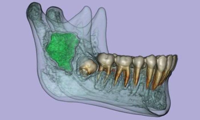 3D CT rekonstrukce cysty