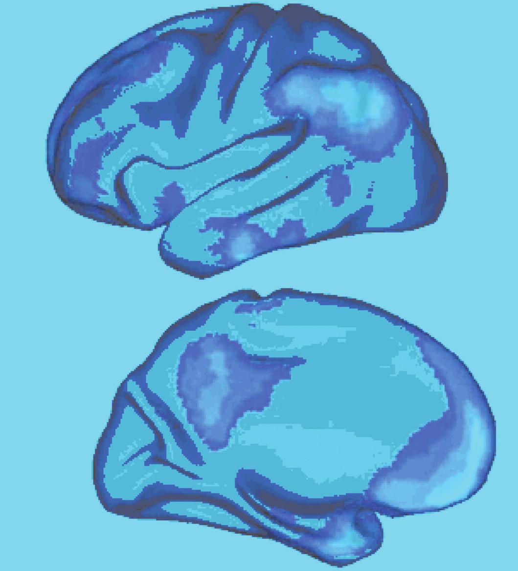 Implicitní (default) síť lidského mozku. Zevní a vnitřní plocha levé hemisféry. Dle Buckner et al. 2008 (2).
