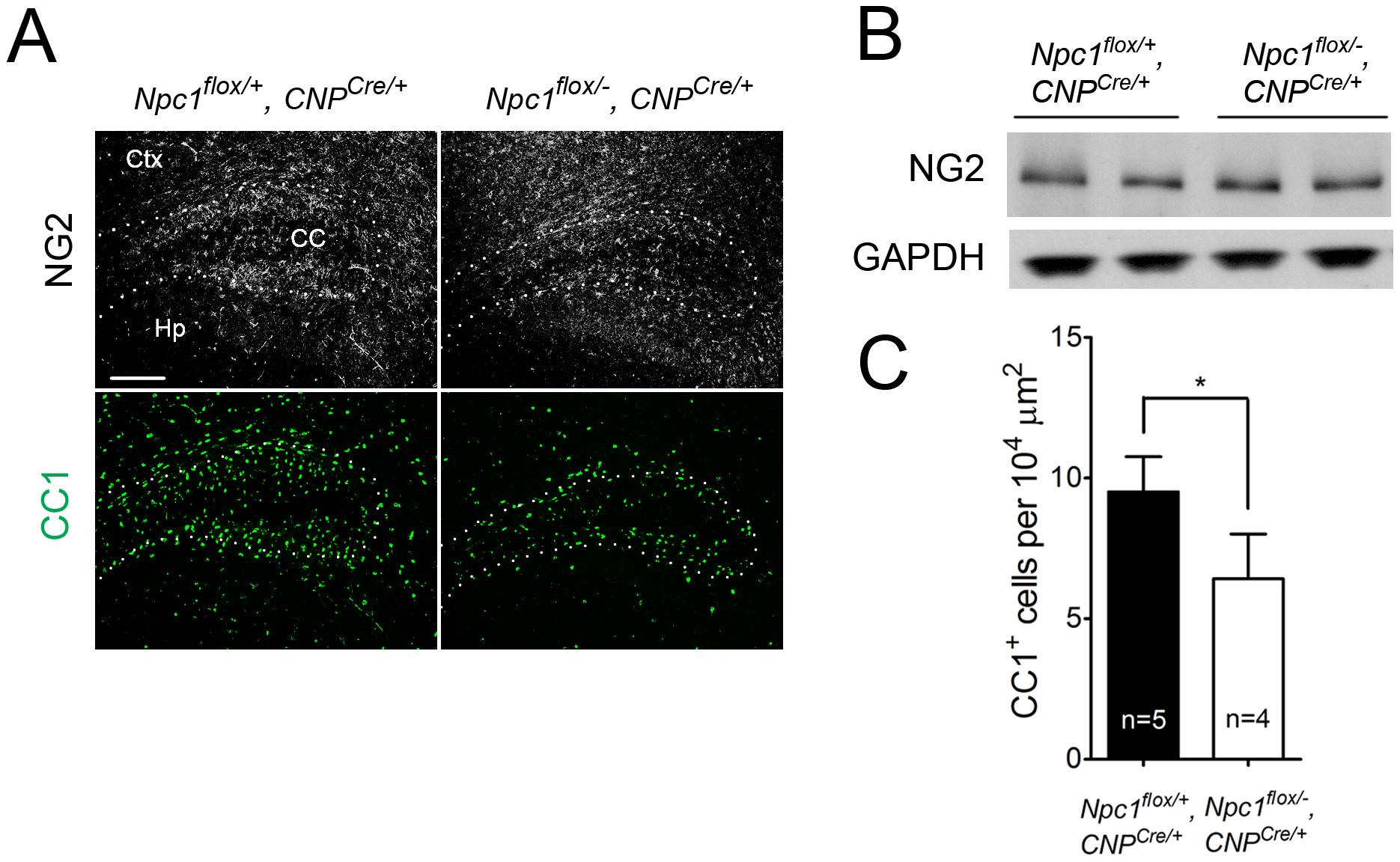 Oligodendrocyte-specific deletion of <i>Npc1</i> leads to blockade of oligodendrocyte maturation.