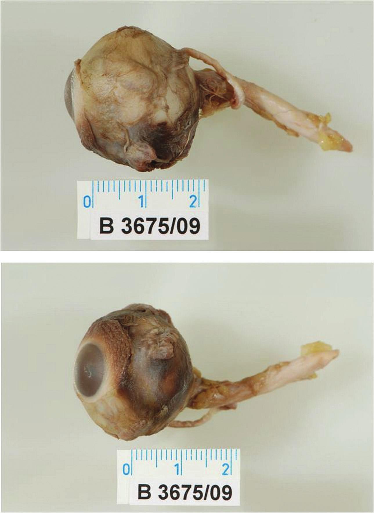 Neporušené enukleované levé oko s enormně dlouhým pahýlem zrakového nervu (4,5 cm), s odtrženými zevními očními svaly