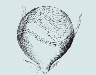 Ureterální augmentace. (A – podélná incize hydroureteru a m.m., B – vložení vytvořené záplaty do rozpolceného m.m., C – vytvoření kupole m.m.)